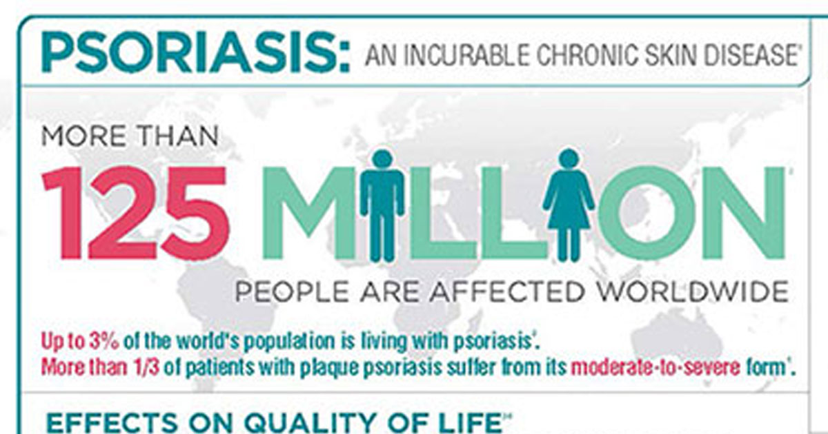 What Are the Effects of Psoriasis?: New Life Outlook  Infographic