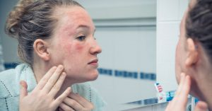 Woman is looking at her facial rash in the mirror