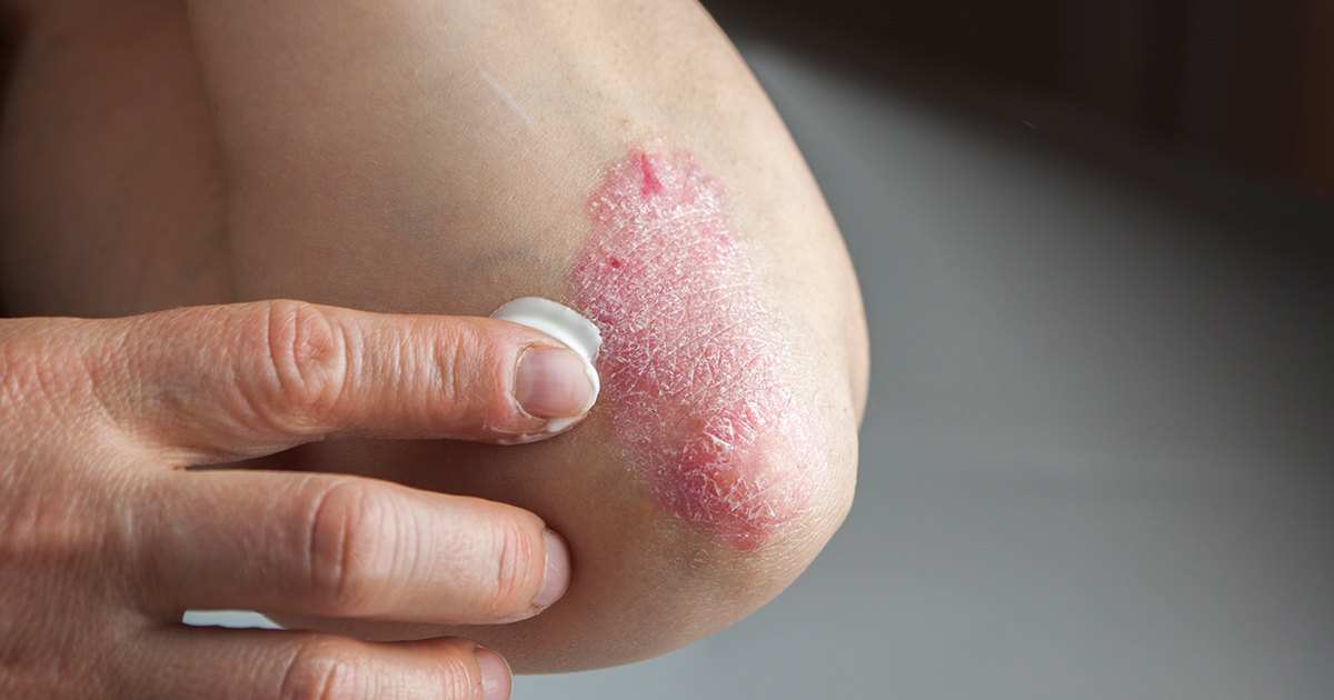 person putting cream on skin rash on elbow
