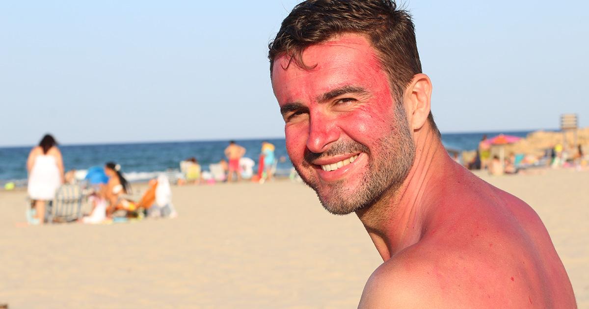 sunburnt man on a beach