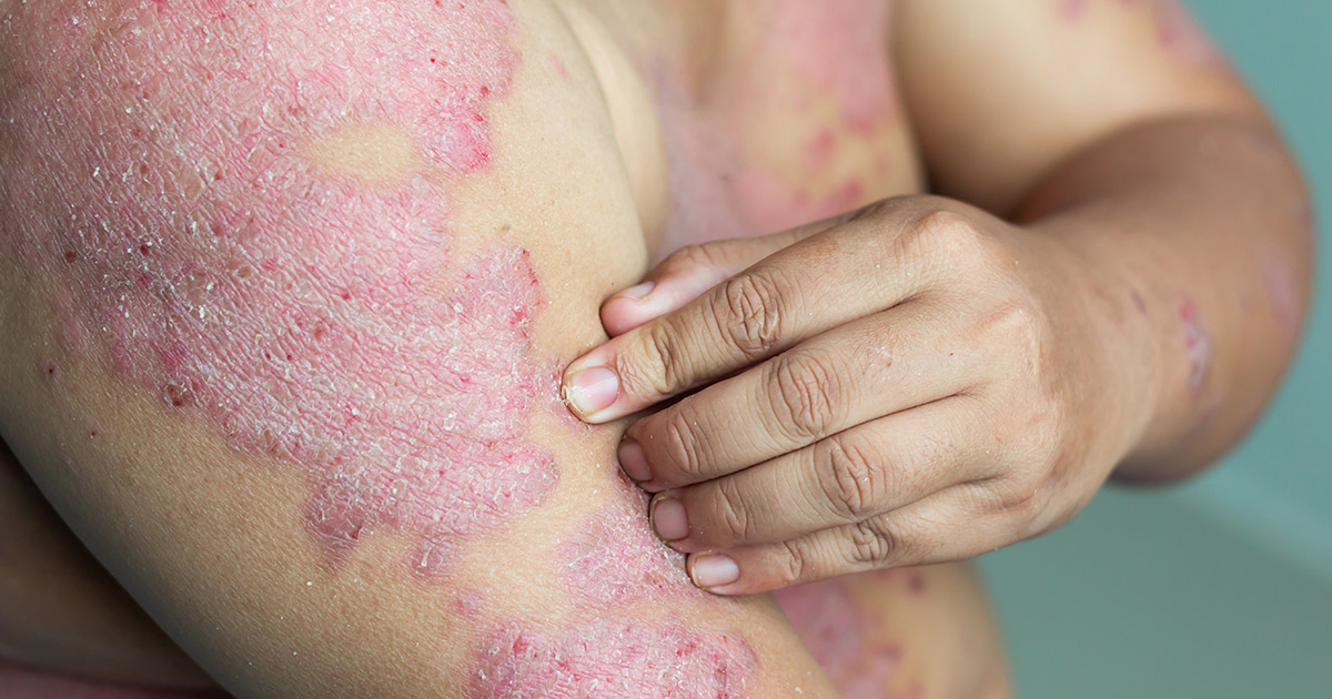 person scratching arm with psoriasis