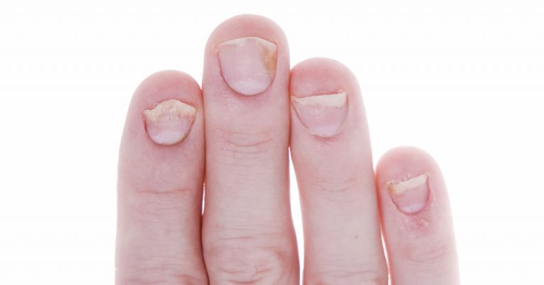 Nail Psoriasis: Telltale Signs of Nail Psoriasis and When to Seek ...