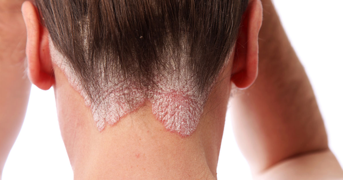 Man has scalp psoriasis