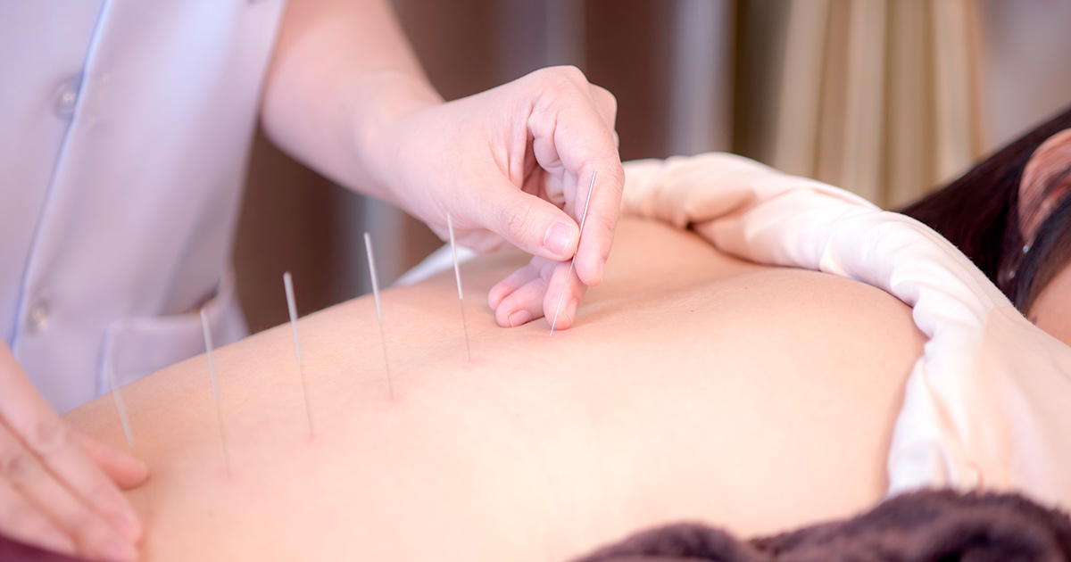 physiotherapist doing acupuncture on female patient