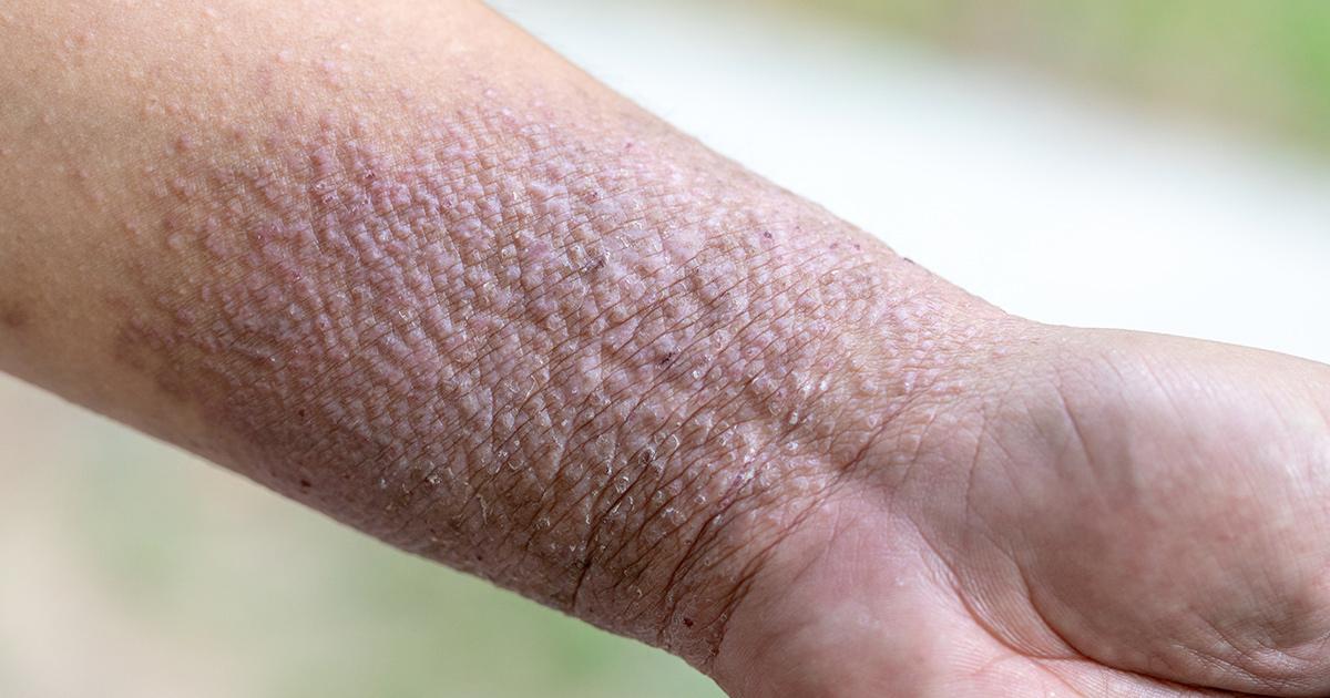 Pustular Psoriasis: Spotting Symptoms and Treating the