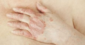 Psoriasis on knuckles and hands