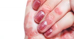 psoriasis on a female hand with painted nails
