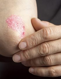 Difference Between Eczema and Psoriasis