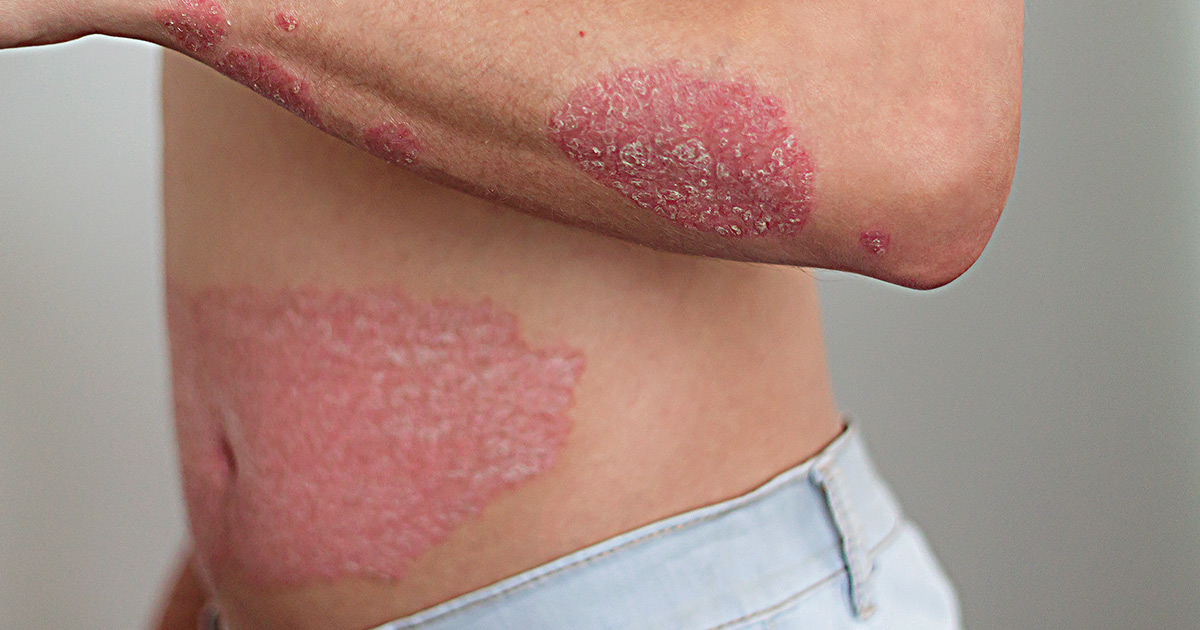 person with psoriasis flare up on arm and across stomach