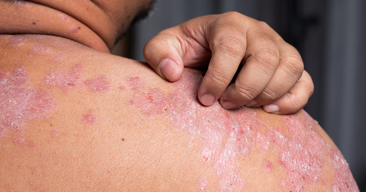 person scratching psoriasis rash on shoulder