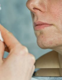 Preventing a Psoriasis Infection