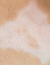 Psoriasis White Patches