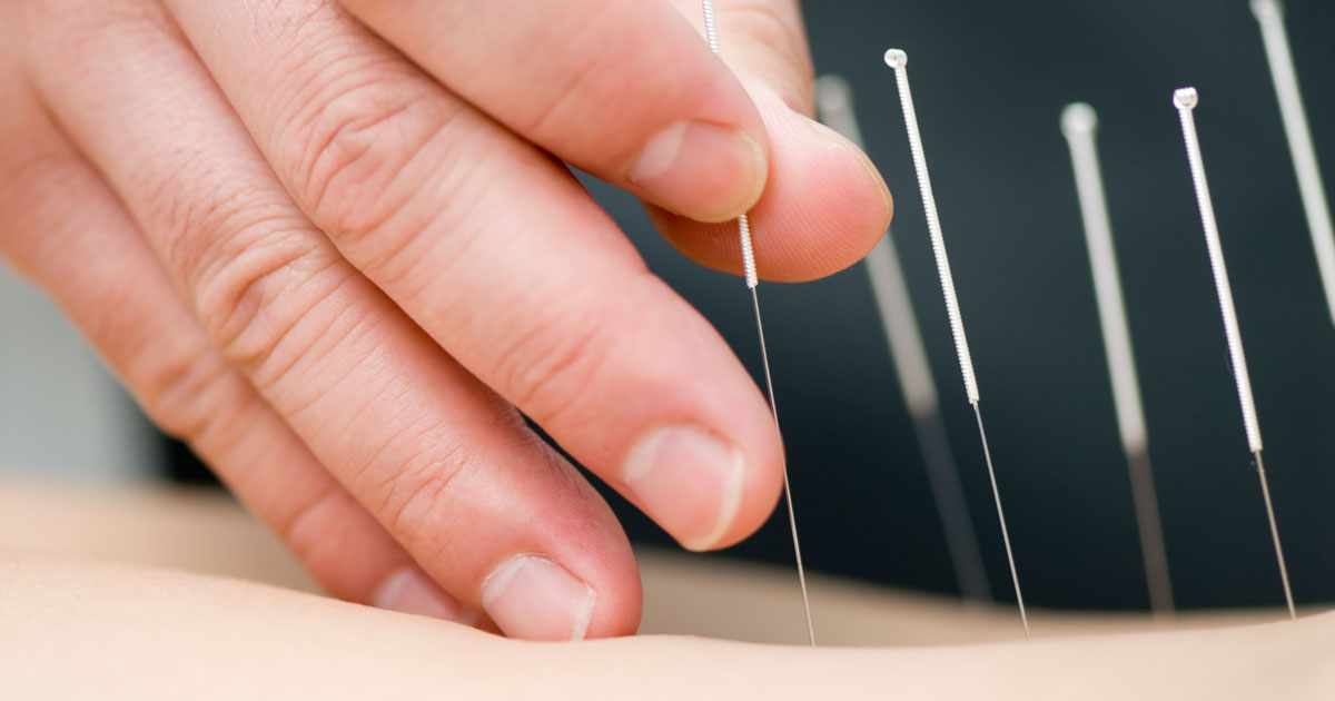 Acupuncture needles being placed into a patient's back