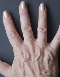 Psoriatic Arthritis: Caring for Your Hands and Feet