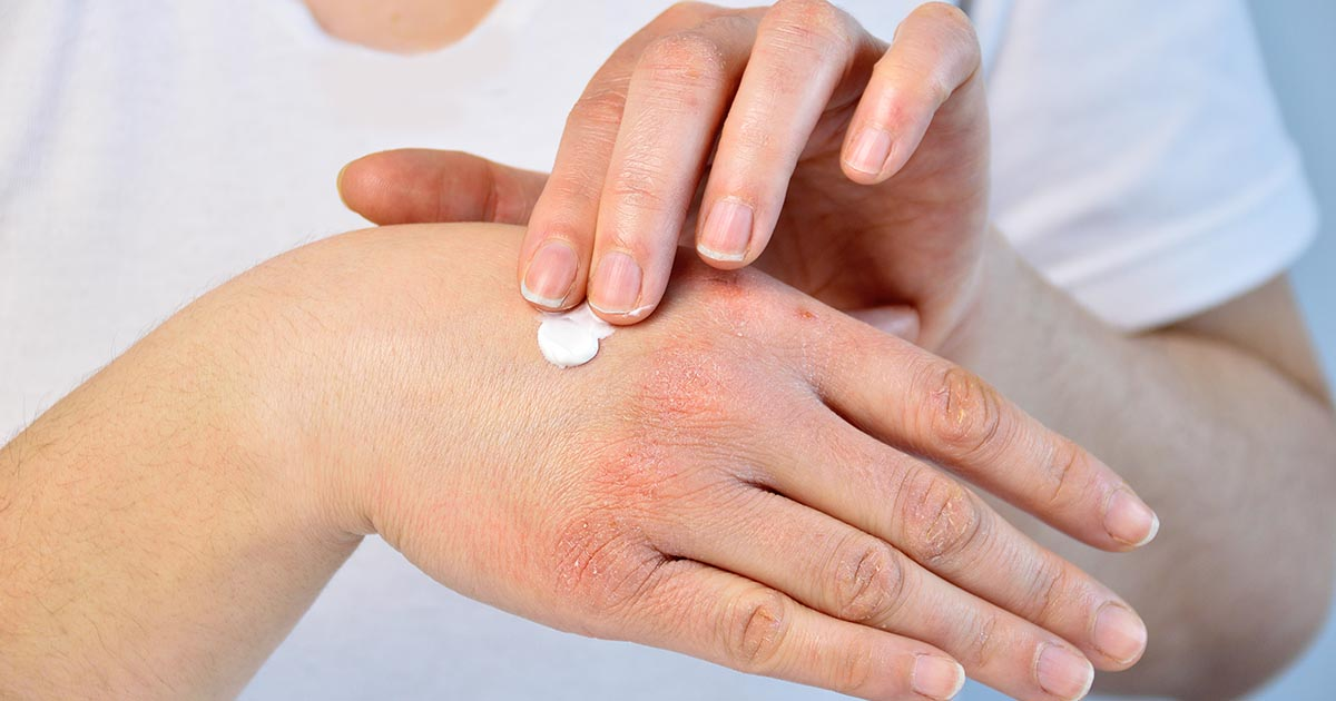 woman putting moisturizer onto her hand with very dry skin and deep cracks