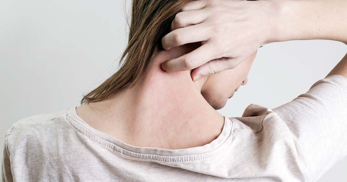 Woman with psoriasis itching the back of her neck