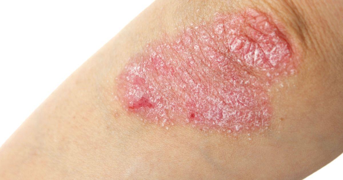 a psoriasis rash