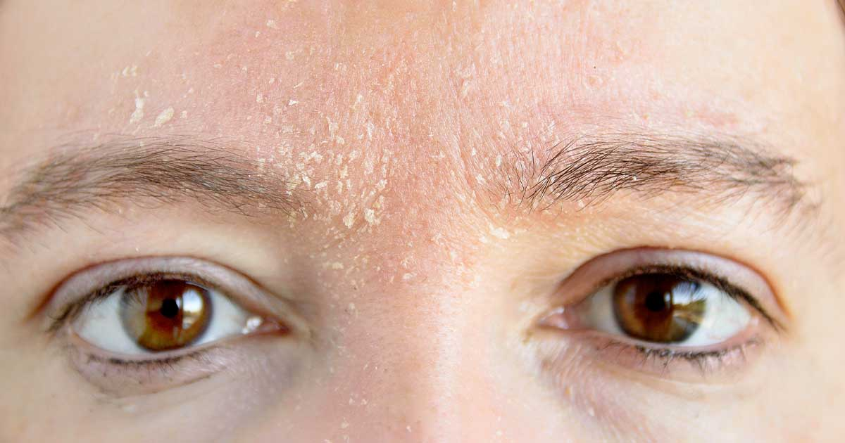 Mild psoriasis on a person's forehead above their eyebrows.