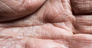 A wrinkly palm of a hand.